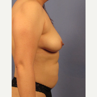 25-34 year old woman treated with Breast Augmentation before 3106765