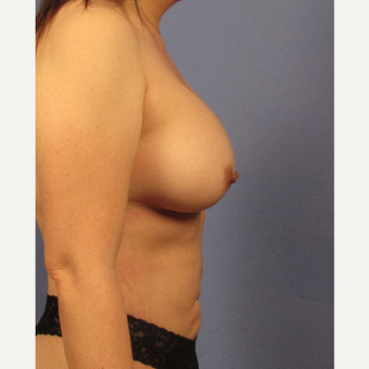 25-34 year old woman treated with Breast Augmentation after 3106765