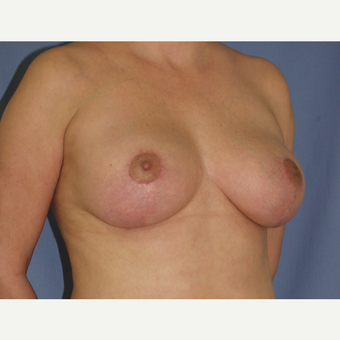 35-44 year old woman treated with Breast Lift after 3194284