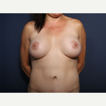 45-54 year old woman treated with Breast Lift with Implants (view 1 of 2) after 3186703