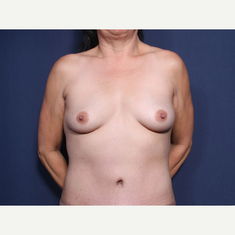 45-54 year old woman treated with Breast Lift with Implants (view 1 of 2) before 3186703