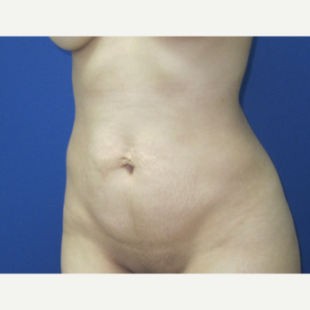 25-34 year old woman treated with Tummy Tuck before 3695818