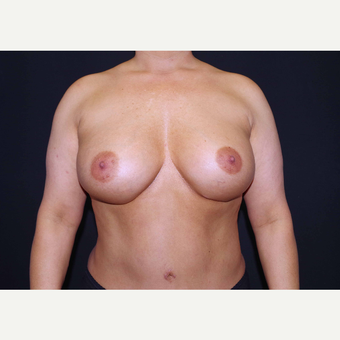 35-44 year old woman treated with Breast Implants after 3441080
