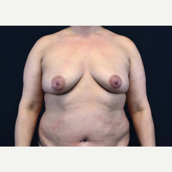 35-44 year old woman treated with Breast Implants before 3441080