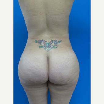 25-34 year old woman treated with Brazilian Butt Lift after 3107915