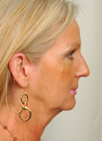 55 year old woman treated with Rhinoplasty before 2882976