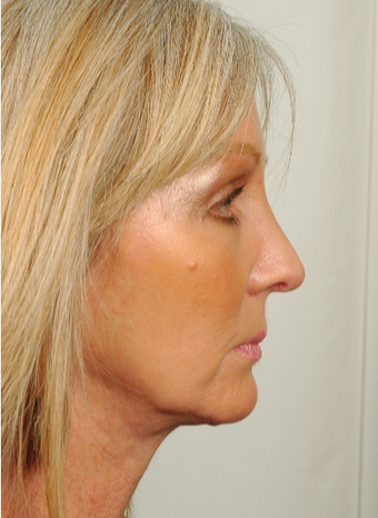 55 year old woman treated with Rhinoplasty after 2882976