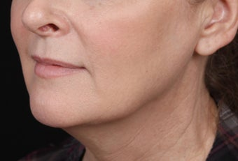 Skin Tightening for the Jawline after 1357670