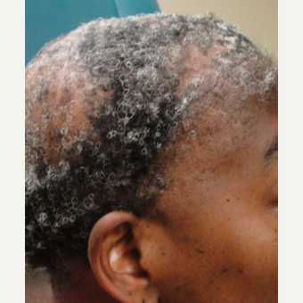 55-64 year old woman treated with PRP for Hair Loss after 2971291