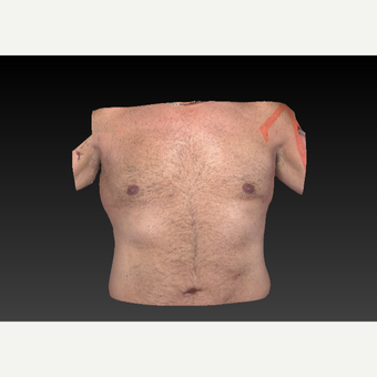 45-54 year old man treated with Smart Lipo after 3804272