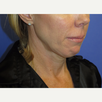 47 year old woman treated with Neck Lift before 3054247