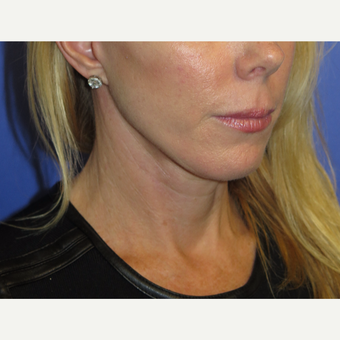47 year old woman treated with Neck Lift after 3054247