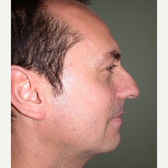 45-54 year old man treated with Rhinoplasty before 3686975