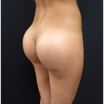 25-34 year old woman treated with 548cc Silicone Butt Implants after 3033261