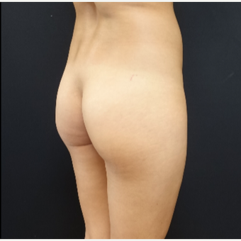 25-34 year old woman treated with 548cc Silicone Butt Implants before 3033261