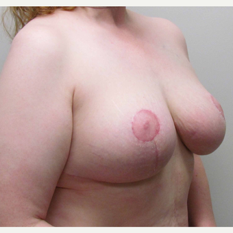 Breast Reduction for this 44 Year Old Woman after 3043168