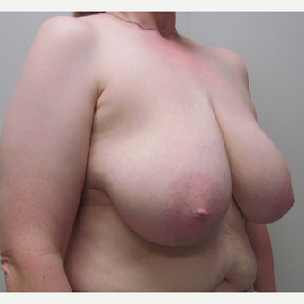 Breast Reduction for this 44 Year Old Woman before 3043168