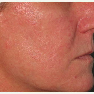45-54 year old woman treated with Photofacial after 2714140