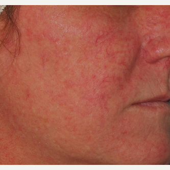 45-54 year old woman treated with Photofacial before 2714140