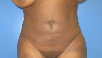 25-34 year old woman treated with Liposuction after 3725281