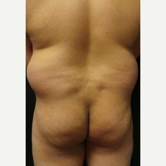 25-34 year old woman treated with Brazilian Butt Lift before 3022942