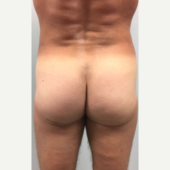 25-34 year old woman treated with Brazilian Butt Lift after 3022942