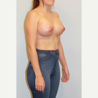 25-34 year old woman treated with Breast Augmentation after 3027411