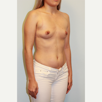 25-34 year old woman treated with Breast Augmentation before 3027411