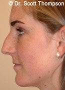 16 Year Old Female with Rhinoplasty before 825392