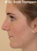 16 Year Old Female with Rhinoplasty after 825392