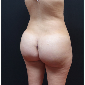 25-34 year old woman treated with Liposuction after 3629944