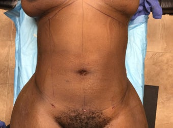 35-44 year old woman treated with Smart Lipo after 3286848