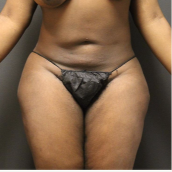 35-44 year old woman treated with Smart Lipo before 3286848