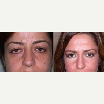 45-54 year old woman treated with Eyelid Surgery before 3602477