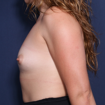 25-34 year old woman treated with Breast Augmentation (view 2 of 2) before 3213677