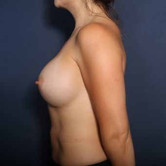 25-34 year old woman treated with Breast Augmentation (view 2 of 2) after 3213677