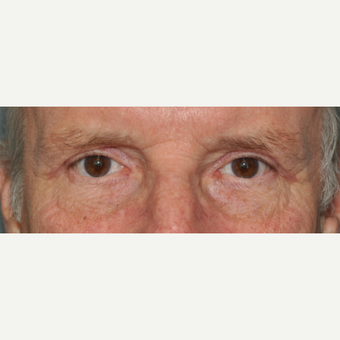 65-74 year old man treated with Eyelid Surgery after 3508726