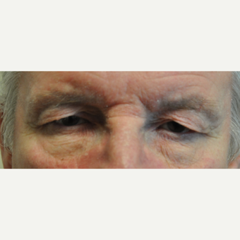 65-74 year old man treated with Eyelid Surgery before 3508726