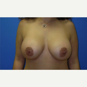 35-44 year old woman treated with Breast Augmentation after 2503914
