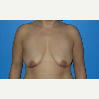 35-44 year old woman treated with Breast Augmentation before 2503914