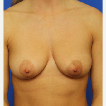 30- year old woman treated with Breast Augmentation before 3124499