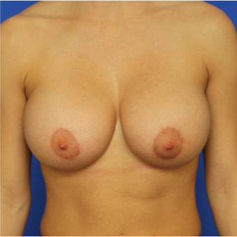 30- year old woman treated with Breast Augmentation after 3124499