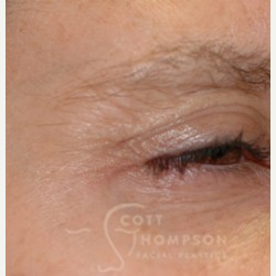 35-44 year old woman treated with Botox after 3456325