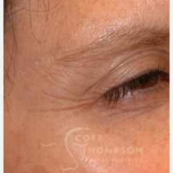 35-44 year old woman treated with Botox before 3456325