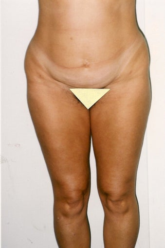 Tummy tuck & Liposuction before 1372464