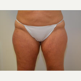 35-44 year old woman treated with CoolSculpting before 2064942