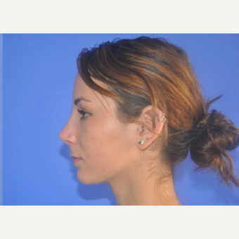 18-24 year old woman treated with Rhinoplasty after 3240064