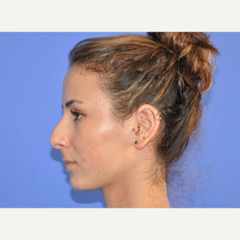 18-24 year old woman treated with Rhinoplasty before 3240064