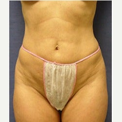 45-54 year old woman treated with Mini Tummy Tuck before 2066865