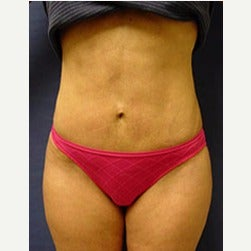 45-54 year old woman treated with Mini Tummy Tuck after 2066865